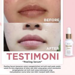 Peeling Serum Ms Glow
